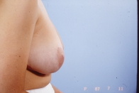 Breast Reduction after 3446213
