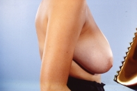 Breast Reduction before 3446213