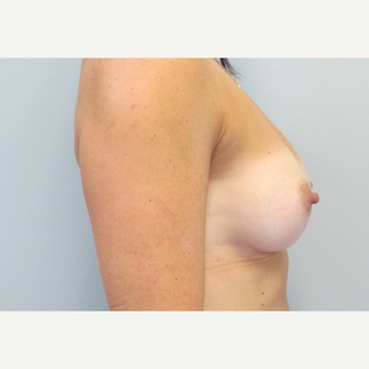 35-44 year old woman treated with Breast Augmentation after 3185769