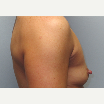 35-44 year old woman treated with Breast Augmentation before 3185769