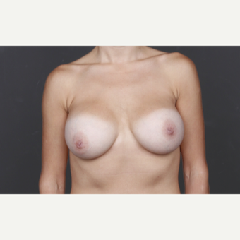 25-34 year old woman treated with Breast Implants after 2993247
