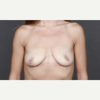 25-34 year old woman treated with Breast Implants before 2993247