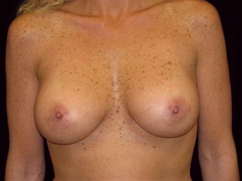 Breast augmentation after 293898