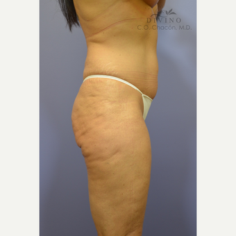 45-54 year old woman treated with Liposuction before 3421485