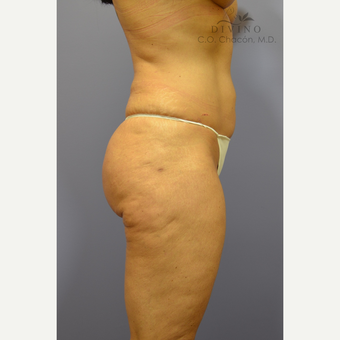 45-54 year old woman treated with Liposuction after 3421485