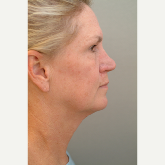 55-64 year old woman treated with Facelift before 3622705