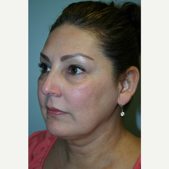 49 year old woman treated with Facelift before 3442658