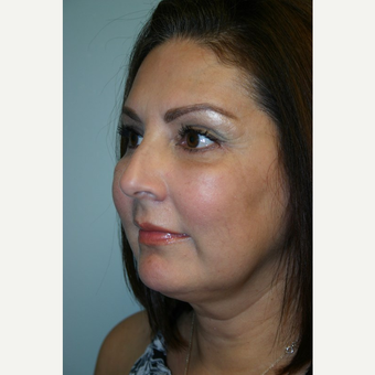 49 year old woman treated with Facelift after 3442658