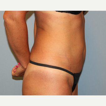 35-44 year old woman treated with Tummy Tuck before 3815724