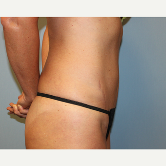 35-44 year old woman treated with Tummy Tuck after 3815724