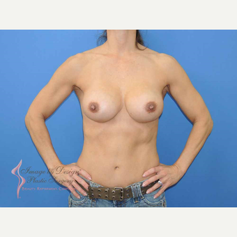 45-54 year old woman treated with Breast Fat Transfer after 2921187