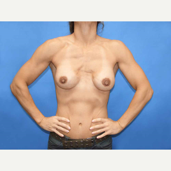 45-54 year old woman treated with Breast Fat Transfer before 2921187