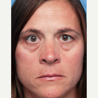 35-44 year old woman treated with Eyelid Surgery before 3267095