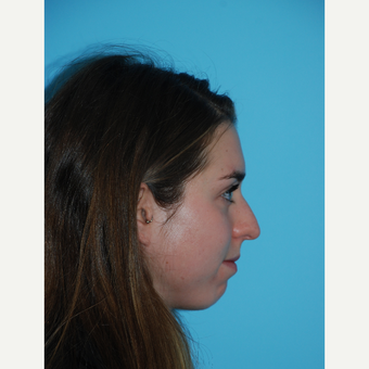 24 year old woman 1 month after rhinoplasty before 3140085