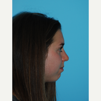 24 year old woman 1 month after rhinoplasty after 3140085