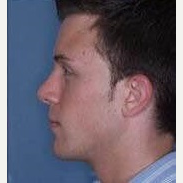25-34 year old man treated with Rhinoplasty after 3260963