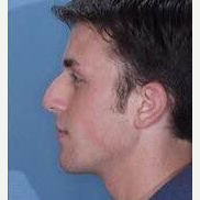 25-34 year old man treated with Rhinoplasty before 3260963