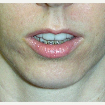 45-54 year old woman treated with Chin Surgery 1775161