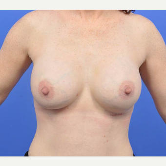 35-44 year old woman treated with Breast Augmentation after 3091330