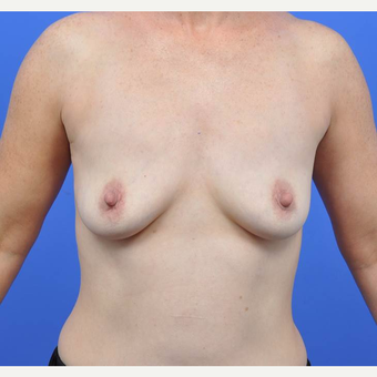 35-44 year old woman treated with Breast Augmentation before 3091330