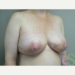 Breast Implant Revision after 3373368