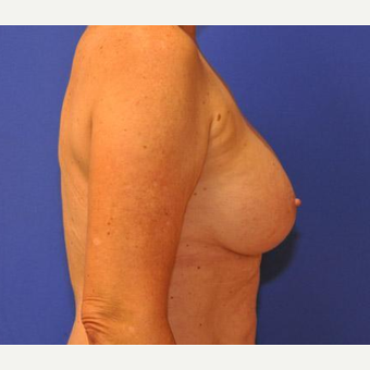 Breast Augmentation after 3206542