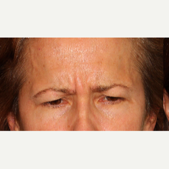 45-54 year old woman treated with Botox before 3220027
