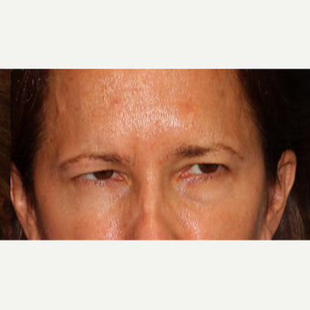 45-54 year old woman treated with Botox after 3220027