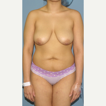 25-34 year old woman treated with Breast Lift before 3454547