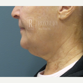 65-74 year old woman treated with Ultherapy before 3777565