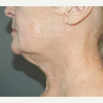 65-74 year old woman treated with Ultherapy after 3777565