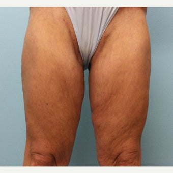 45-54 year old woman treated with Thigh Lift and Tummy Tuck after 2642839