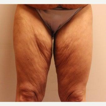 45-54 year old woman treated with Thigh Lift and Tummy Tuck before 2642839