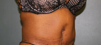 35-44 year old woman treated with Tummy Tuck after 2556196