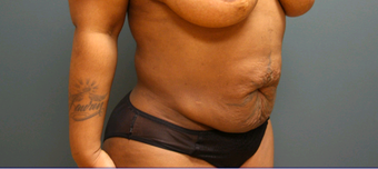 35-44 year old woman treated with Tummy Tuck before 2556196