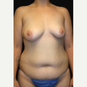 29 y/o - Immediate Bilateral DIEP Breast Flap Reconstruction (BRCA+, Prophylactic Mastectomies) before 2028533