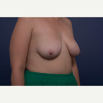 25-34 year old woman treated with Breast Lift with Implants before 3728891