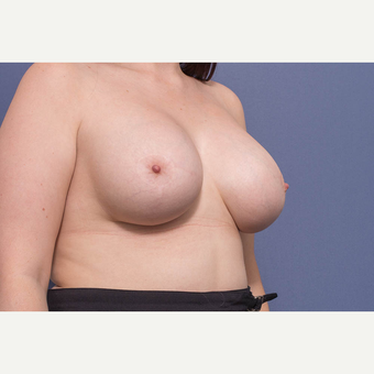 25-34 year old woman treated with Breast Lift with Implants after 3728891