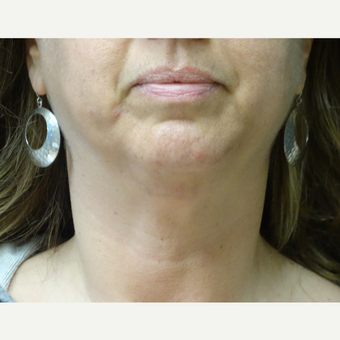 45-54 year old woman treated with Ultherapy before 3143472