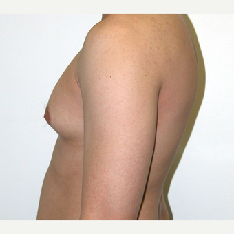 25-34 year old man treated with Male Breast Reduction before 3383216