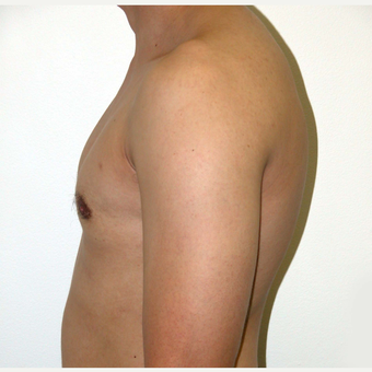25-34 year old man treated with Male Breast Reduction after 3383216