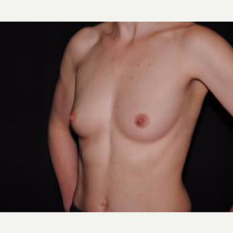25-34 year old woman treated with Breast Implants before 3593672