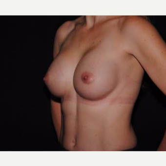 25-34 year old woman treated with Breast Implants after 3593672