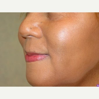 60 year old female treated with Juvederm 1912944
