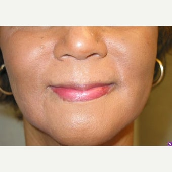 60 year old female treated with Juvederm after 1912944