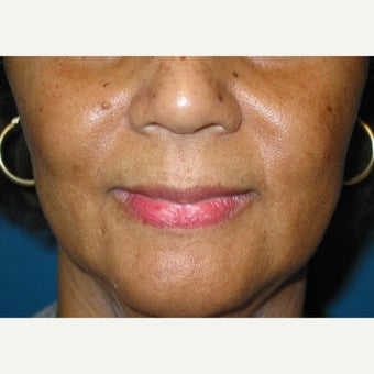 60 year old female treated with Juvederm before 1912944