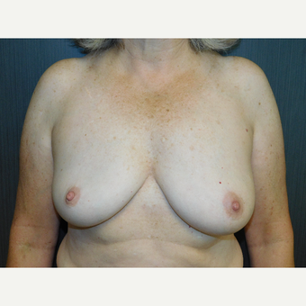 Breast implant removal in an active and outdoorsy lady. after 3344634