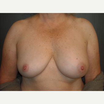 Breast implant removal in an active and outdoorsy lady. before 3344634