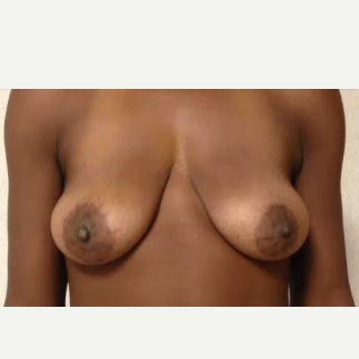 34 year old woman treated with breast lift before 1743555