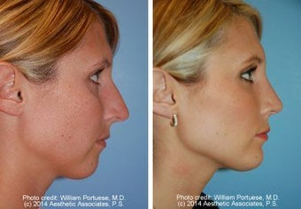 Neck Lift, Chin Implant, Rhinoplasty before 91937